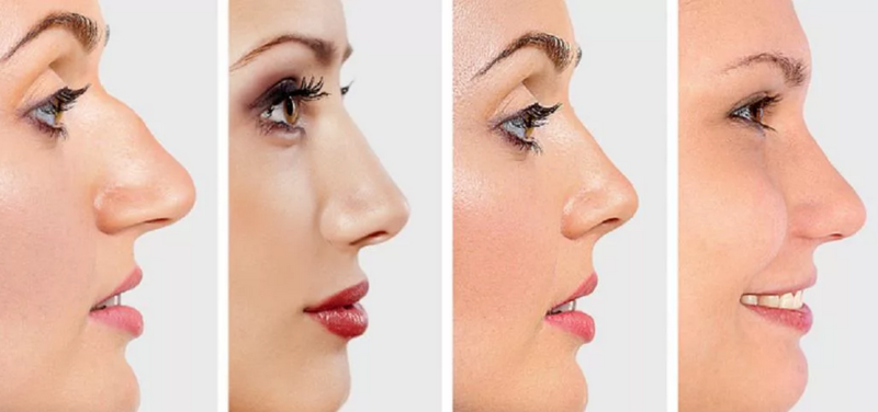 Как можно узнать характер человека по форме носа