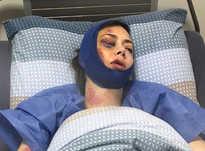 Настасья Самбурская заявила об избиении и выложила фото из больницы